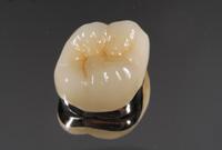 セラミックと金属の奥歯かぶせ物